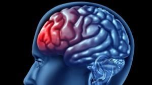 mild-traumatic-brain-injury-300x168